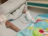 """泸州8岁女孩被车压伤 路人筑起""""最暖人墙""""挡住车流"""